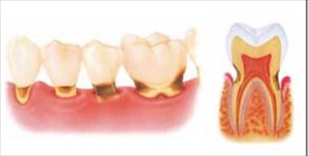 歯医者さんが教える!根管治療の治りやすさ④
