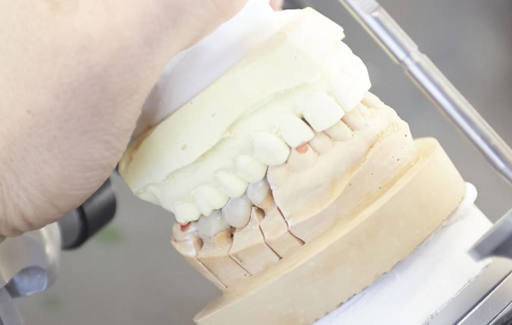 入れ歯の調整・作成